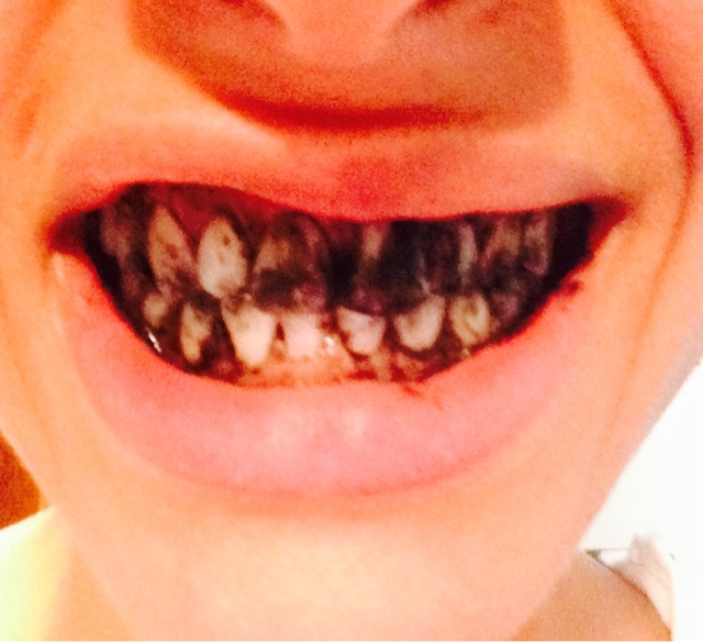 frugal opulence teeth whitening with activated charcoal