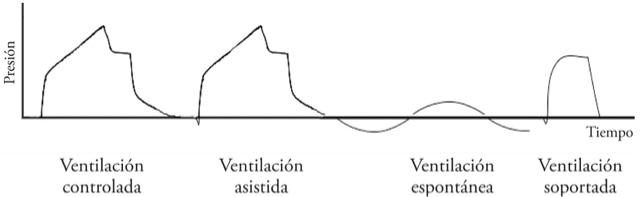 Enfermer a pr ctica avanzada ventilaci n mec nica v - Ventilacion mecanica controlada ...