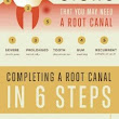 Root Canal- What is it?