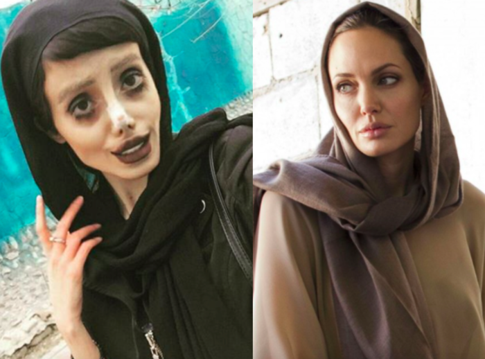 Angelina Jolie Fan Iran >> Superstar Plastic Surgery : Hollywood & Bollywood