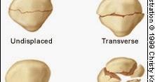 髕骨骨折(Fracture of the patella) - 小小整理網站 Smallcollation