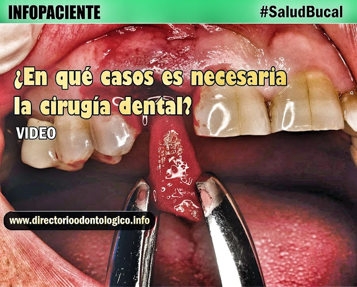 exodoncia-dental