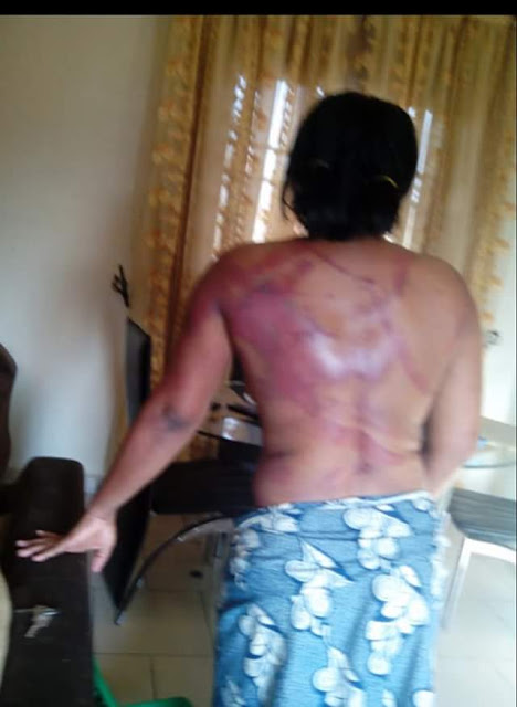 Man Brutalises His Wife In Port Harcourt(Graphic Photos)