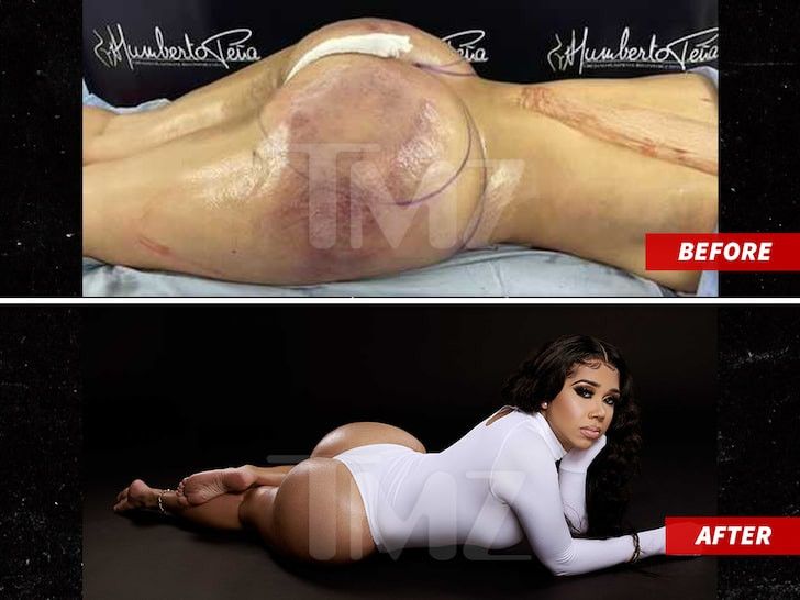 Tekashi 6ix9ine's babymama shows off her new body after plastic surgery scare (photos)