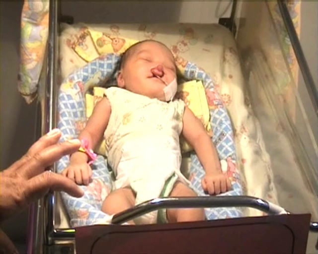 Polisi Buru Orang Tua Bayi Berbibir Sumbing yang Dibuang di Sawah