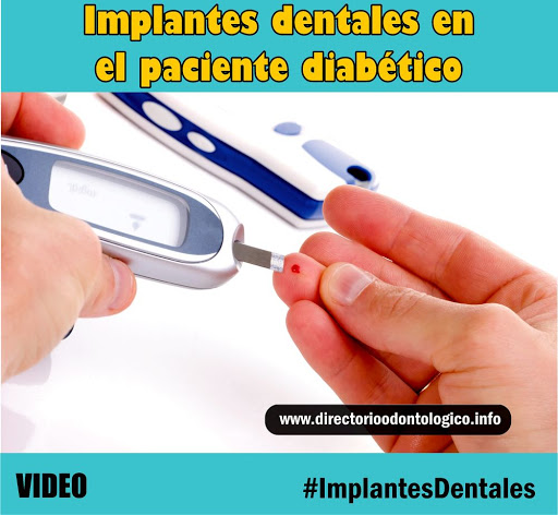 diabetes-implantes-dentales