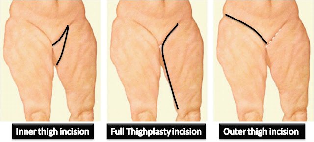 mark of thighplasty
