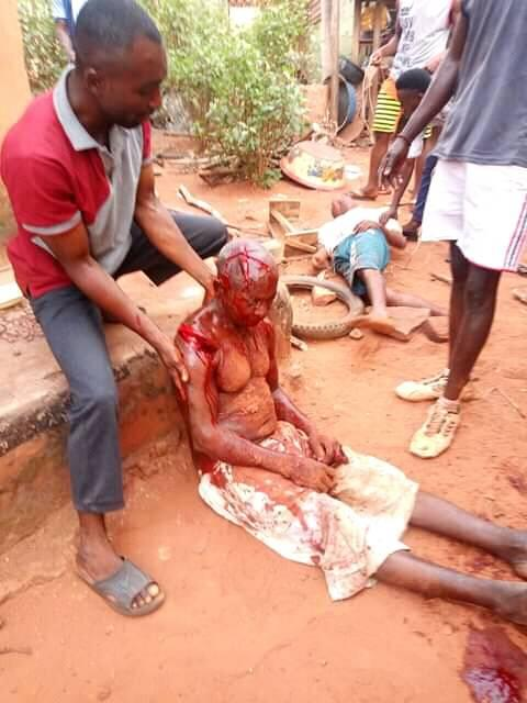 Man Attacks His Uncle, Butchers Him With Cutlass In Kogi