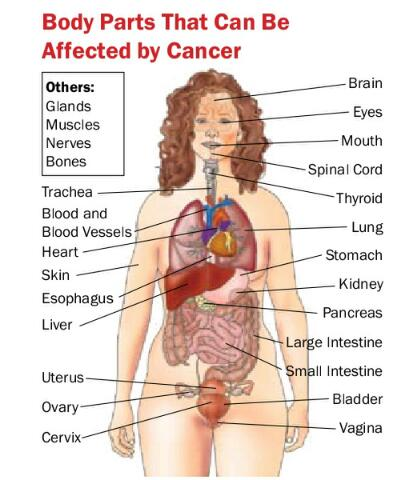 Everything Women Need to Know About Cancer