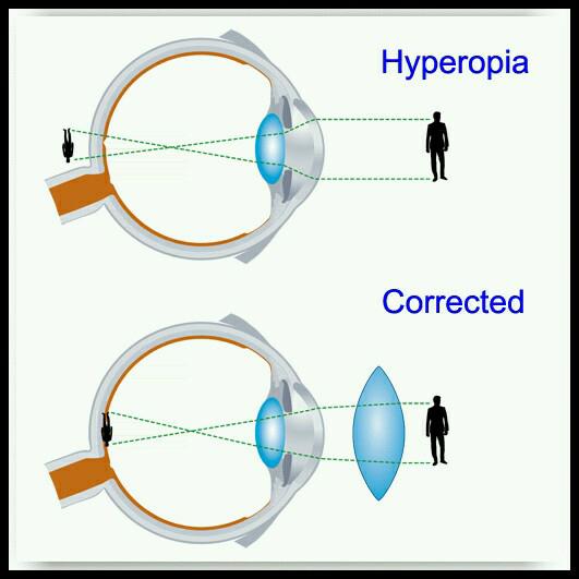 Hyperopia kezelés - szemtorna, Myopia hyperopia kezelés