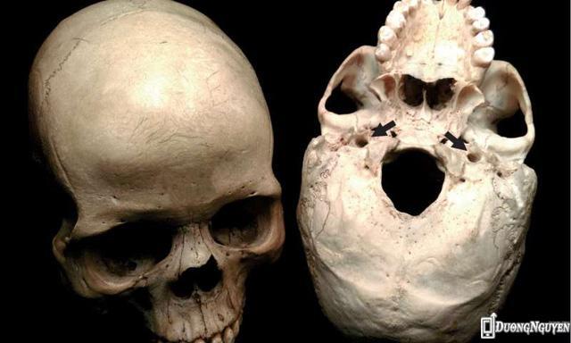 Hộp sọ người. Hai điểm đánh dấu mũi tên là hai lỗ động mạch đi qua. Kích cỡ của lỗ này thể hiện lượng máu lên não, liên quan trực tiếp tới mức độ chuyển hoá chất của não và khả năng nhận thức.