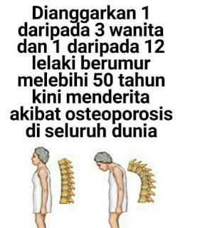 tulang rapuh, sakit tulang rapuh, osteoporosis, Pengedar shaklee johor, p[engedar ostematrix johor, pengedar ostematrix shaklee