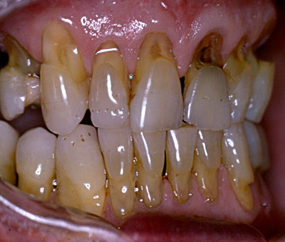 abrasion-dental
