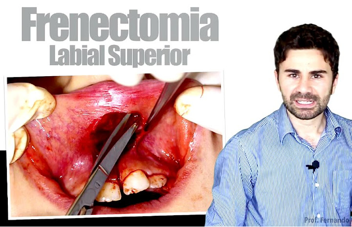 frenectomia-labial-superior