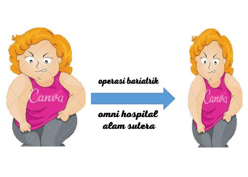 Jalani Operasi Obesitas, Ini Kabar Terbaru Titi Wati