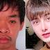 Foi rejeitado em entrevista de emprego e chamado de 'feio': jovem é operado nove vezes e agora é modelo