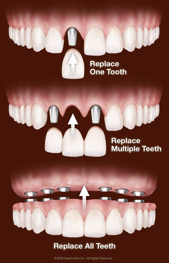 Benefits of dental implants and how they are performed 2