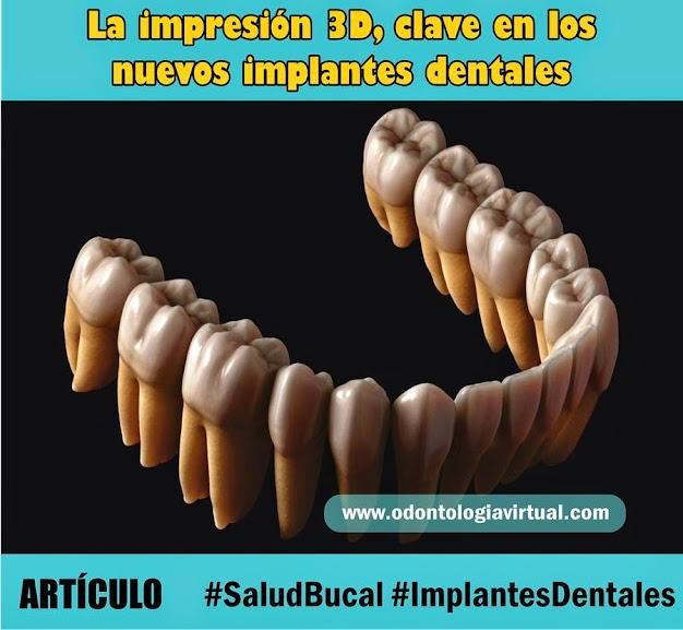 3d-implantes-dentales