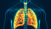 Mesothelioma Compensations, Symptoms, Treatments and Types