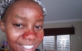 Outrage as Nigerian Girls now use their Menstrual Blood to Clear Pimples from their Faces