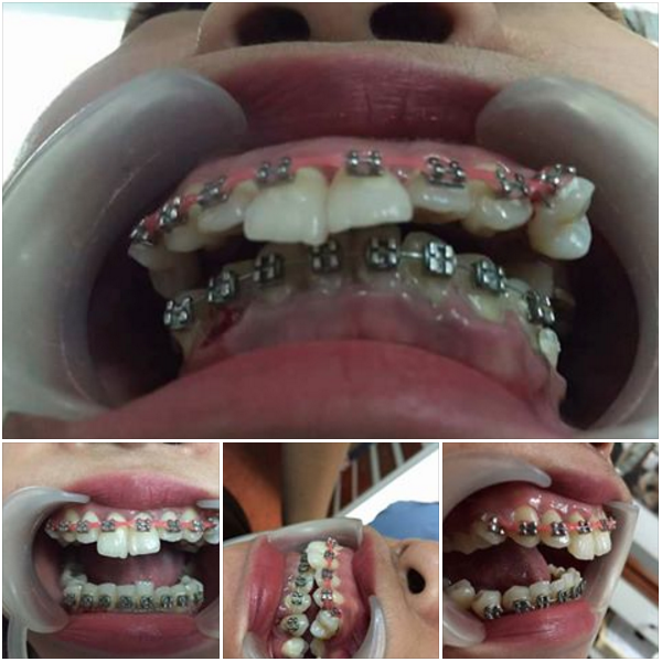Image of dental problems of DIY braces, Dental Braces Gone Wrong, DIY Braces, PDA, Fake Dentist, side effects of DIY braces, severe orthodontic problems, dIY dental braces, miserable teeth alignment, malpractic dental treatment