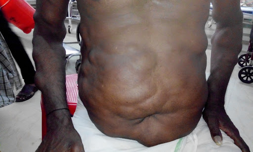 Familial multiple lipomatosis
