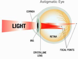 Obat Mata Astigmatisme atau Mata Silindris