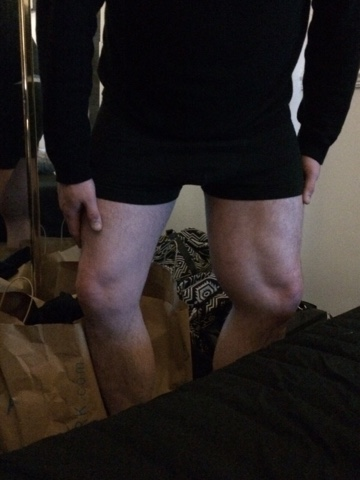 Fight Against Sarcoma: Here Is My Leg