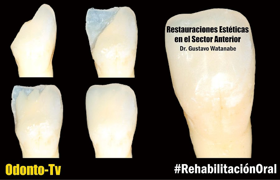 restauracion-dental-anterior