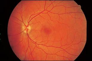 Mirtoplus Herbal Mata Sumbatan Pembuluh Darah Retina