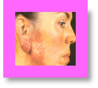 lupus vulgaris images lupus vulgaris treatment lupus vulgaris causes lupus vulgaris histopathology lupus vulgaris differential diagnosis lupus vulgaris medical definition lupus vulgaris medical term lupus vulgaris pictures