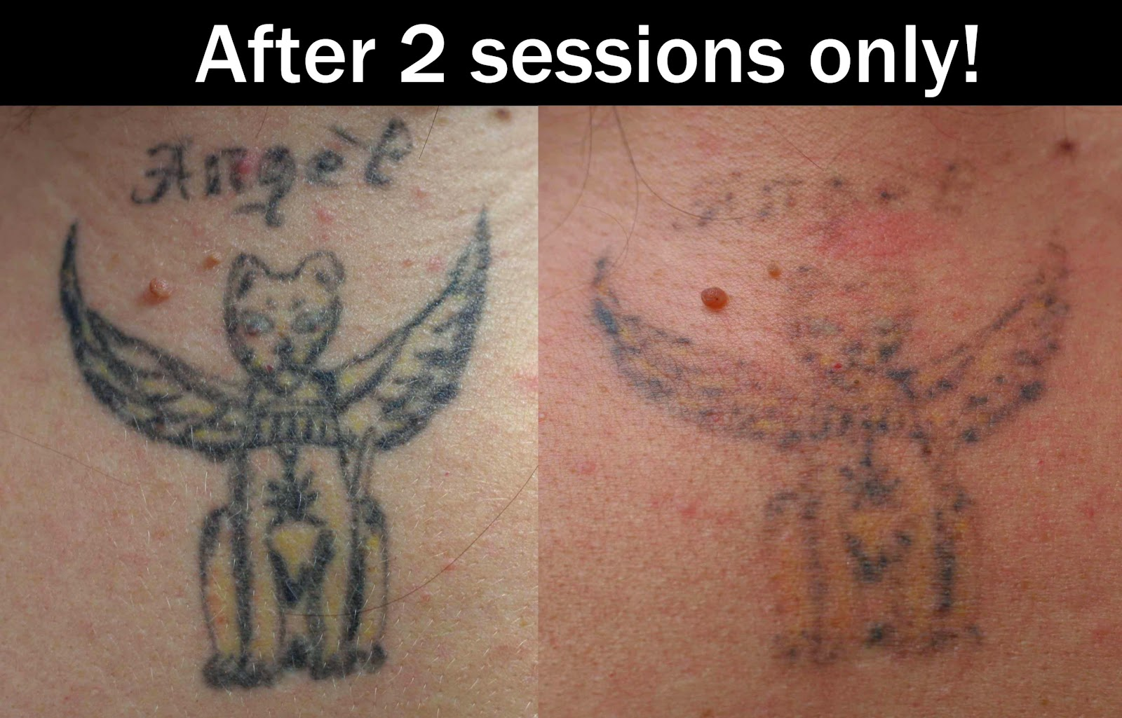 Tattoo Laser Removal Remedies   Tattoo Design and Ideas