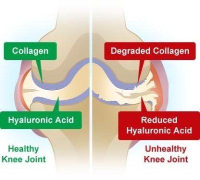 http://www.kateginting.com/2017/05/kolagen-kurangkan-masalah-sakit-sendi-lutut.html