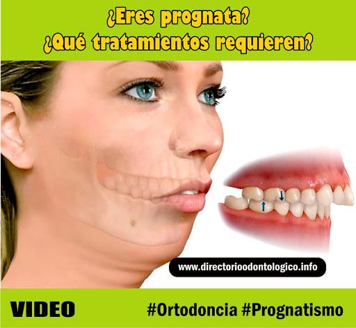 prognatismo
