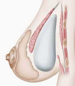 Crédit illustration : SOF.CPRE prothèse à l'arrière du muscle