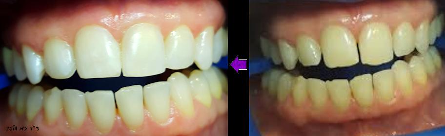 """הלבנת שיניים וסגירת רווחים  בין השיניים, קומפוזיט + ZOOM- ד""""ר גיא וולפין, אסתטיקה דנטלית"""