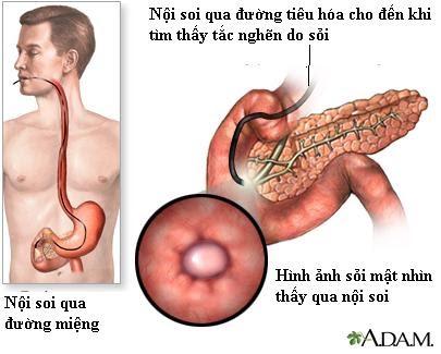 Nội soi chẩn đoán sỏi ống mật chủ