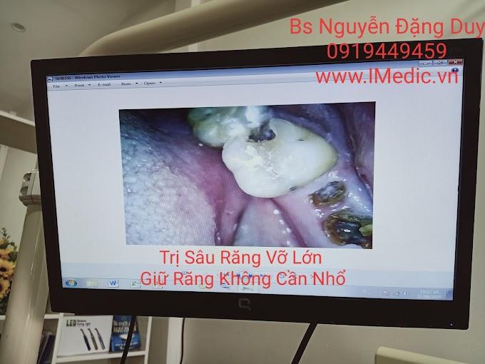 Trị nhức răng Cà Mau không bị nhổ răng | Trị sâu răng không nhổ răng Cà Mau | Trị hư răng không nhổ răng Cà Mau | Phòng Khám Chuyên Khoa Kỹ Thuật Cao IMedic.vn | Thế Giới Nha Khoa . vn | Bs chuyên khoa NGUYỄN ĐẶNG DUY 0919449459