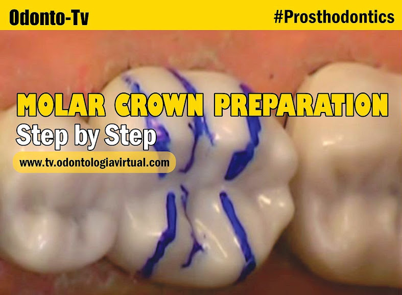 molar-crown-preparation
