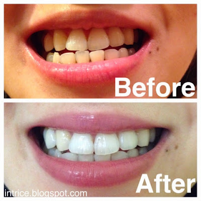 Before and After Using Arm and Hammer Truly Radiant Toothpaste and Mouth Rinse -- photo credit: intrice.blogspot.com