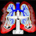 Why Should Mesothelioma Law Firm?