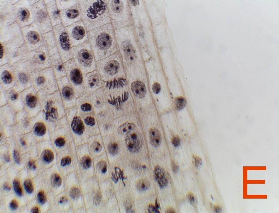 Mitosis - Richard Hanley - Del Sur School Interphase Onion Root Tip