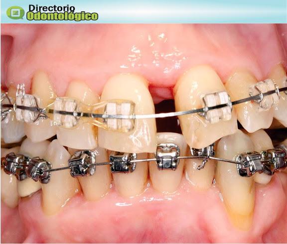 periodoncia-ortodoncia