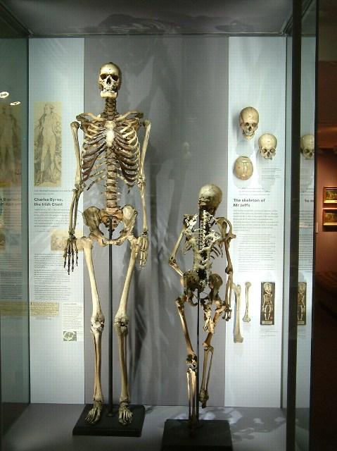 esqueleto del gigante irlandés