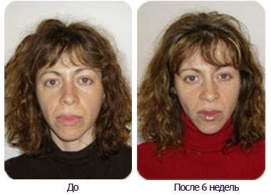 женщина до и после аэробики