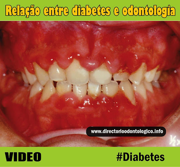 sangramento-nas-gengivas-diabetes