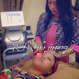 RFRadioFrequency