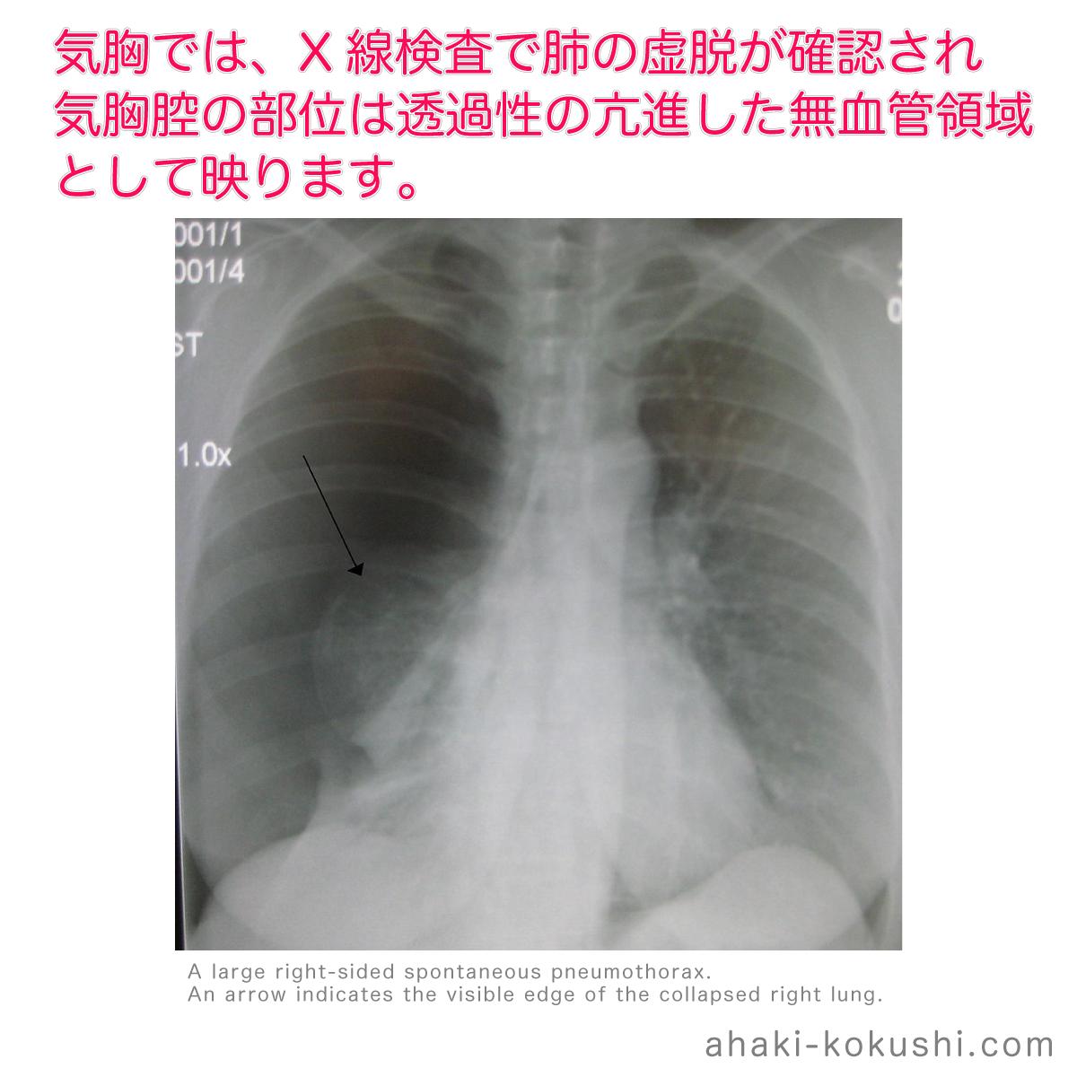 気胸 再発 肺