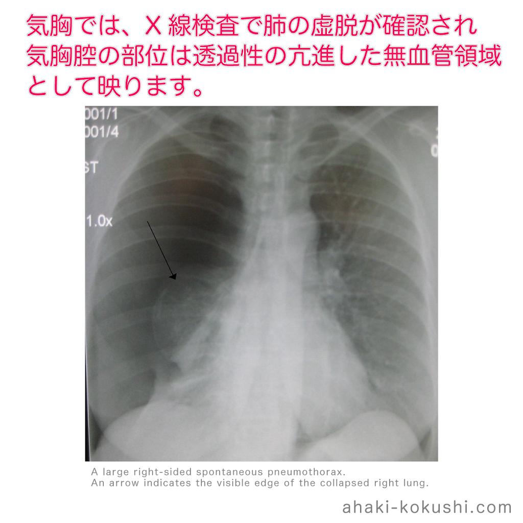 2018-a062-気胸-X線所見.png