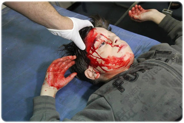 pray for gaza, kanak - kanak gaza, gaza berdarah, gaza cedera